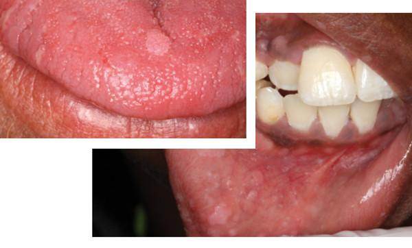 Lesion hpv langue.